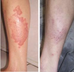 eczema tratamento caseiro para cabelo